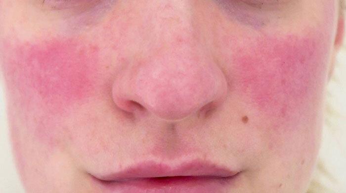 آکنه-روزاسه-(acne-rosacea)